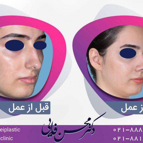 سمپل اینستاگرام جراحی بینی